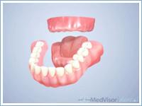 インプラントと総入れ歯の比較
