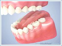 インプラントと部分入れ歯の比較