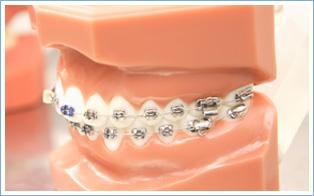 歯並びの悩み