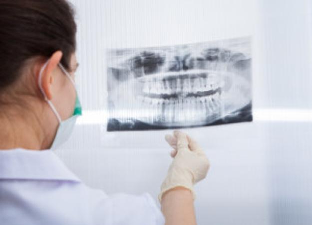 移植する歯の位置付け