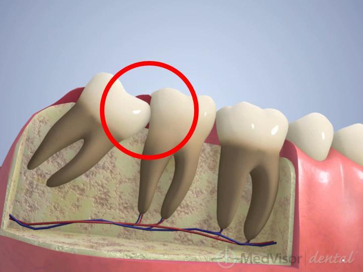 親知らず 抜歯 喉 の 痛み