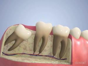 Wisdom teeth extra or not