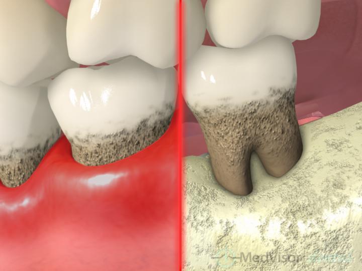 歯周病とその原因