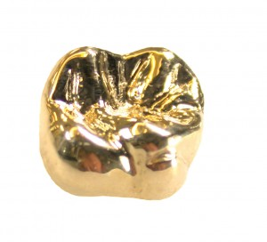 ceramic gold crown