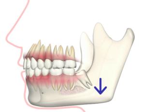 親知らず周りの歯ぐきが腫れた