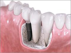 implant fee