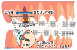 implant orthodontics