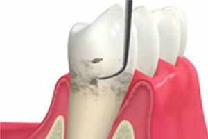 歯周病の進行を止める方法