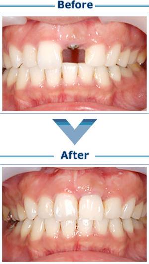 歯を失った部分をインプラントで回復したい。