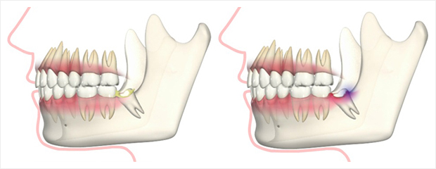 歯茎が腫れる