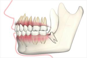 手前の歯が虫歯や歯周病になる
